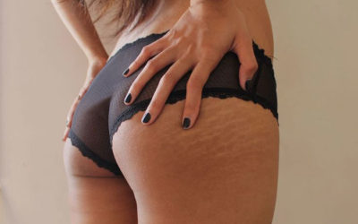 Try This Powerful Stretch Mark Removal Homemade Fix